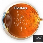น้ำวุ้นตา (vitreous)