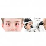 ปัญหาตาแดงในเด็ก