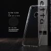 เคส Xiaomi Redmi Note 5A Prime เคสนิ่ม ULTRA CLEAR พร้อมจุดขนาดเล็กป้องกันเคสติดกับตัวเครื่อง สีใส